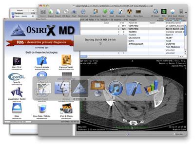 OsiriX MD